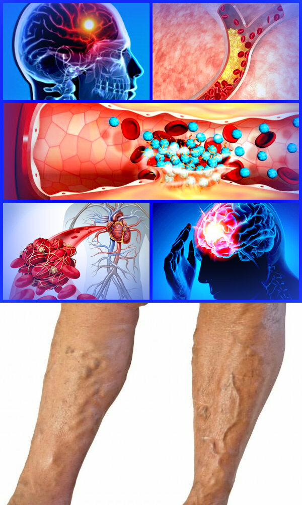 ARTERIAL AND VENOUS THROMBOSIS